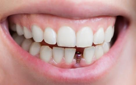 dantu implantacija